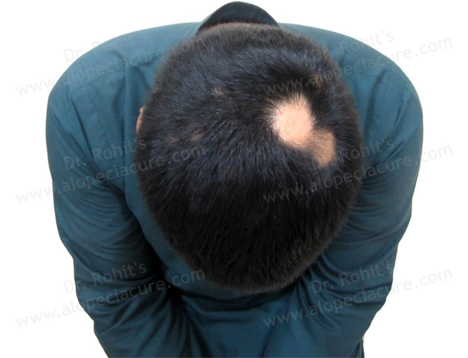 Primary Alopecia Areata