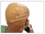 Using garlic, ginger, onion, lime, jamalgota seeds, diphenylcyclopropenone (DPCP) may destroy hair follicles which may convert into scarring alopecia