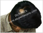 Primary Alopecia Areata