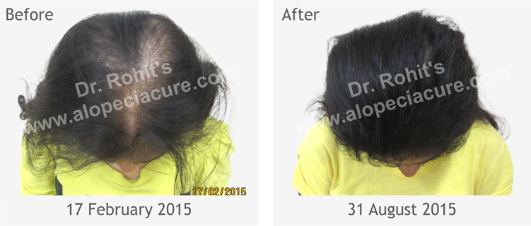 Alopecia Treatment Center