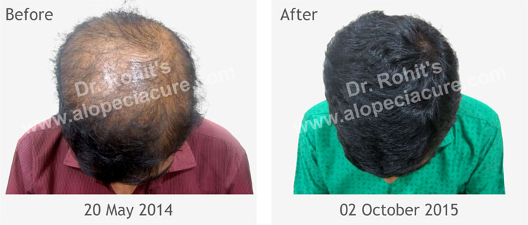 Alopecia Treatment Center