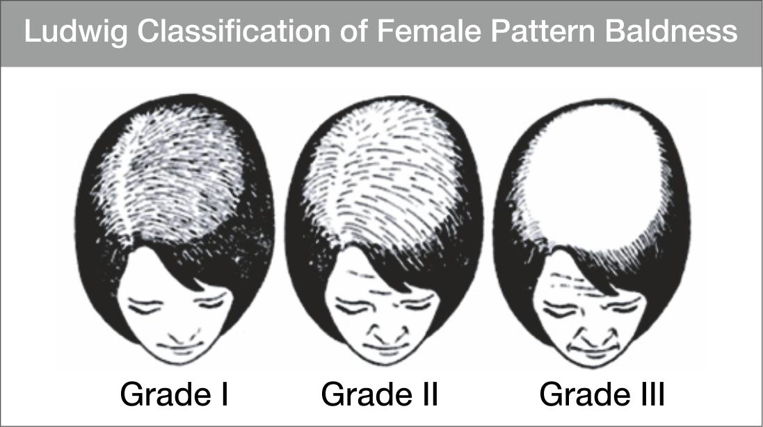 Female pattern baldness (FPB)
