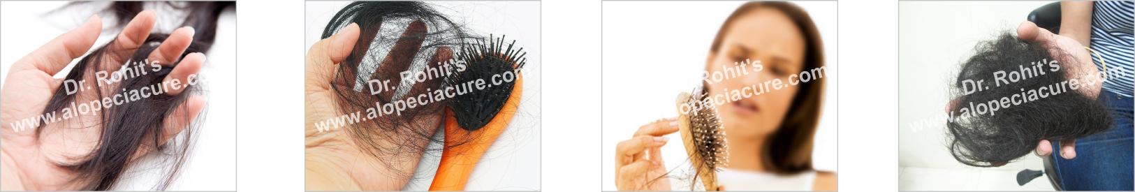 alopecia hair loss treatment - ayurvedic treatment - no side effect