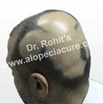 Transient Alopecia Areata