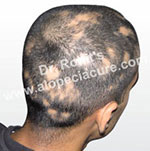 Alopecia herbal treatment in India