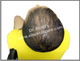 Male diffuse pattern baldness treatment