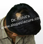 Primary alopecia natural treatment