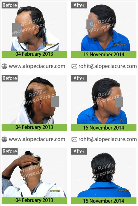 uploads/Patient/17-alopecia-areata-treatment.jpg