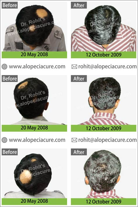 uploads/Patient/5-alopecia-areata-treatment.jpg